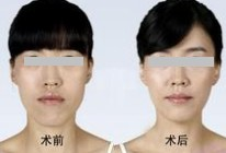 青岛妇婴整形美容医院下颌角整形的适应人群