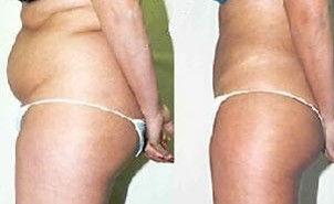 阜阳伊尔美纯韩整形医院吸脂瘦身的并发症有哪些呢