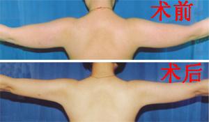 阜阳伊尔美纯韩整形医院手臂吸脂术的术前准备有哪些