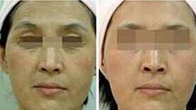 面部除皱案例:找回了青春光彩!
