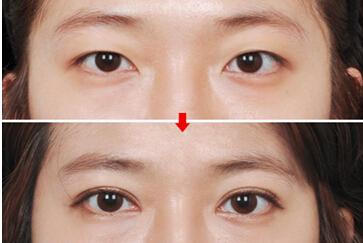 苏州美贝尔抗衰老医疗双眼皮手术前后效果好不好