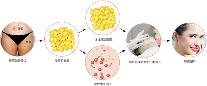重庆联合丽格美容医院全面部自体脂肪填充