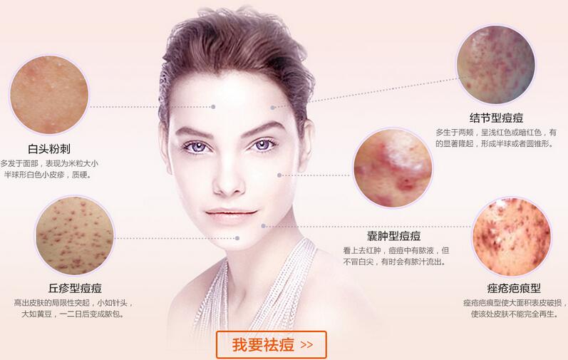 重庆联合丽格美容医院综合祛痘