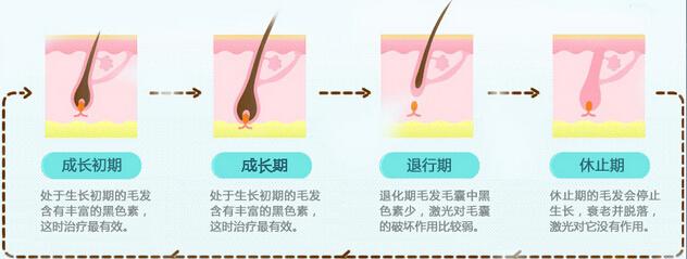 重庆联合丽格美容医院冰点雪肤脱毛