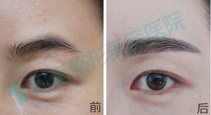 纹眉后补色的时候能改眉眉型吗