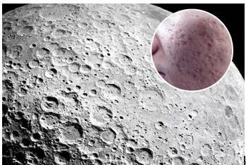 扫平月球脸!看看去痘坑的方法是什么