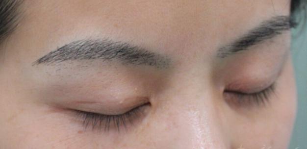 河南整形美容医院做纹眉和植眉哪个更好呢