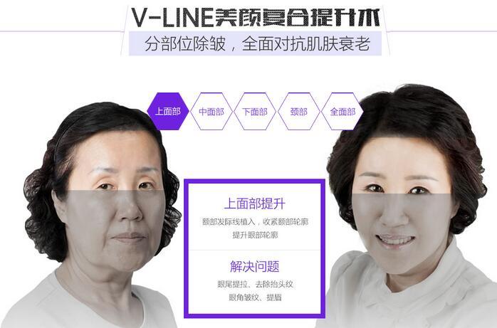 河南整形医院V-LINE美颜复合提升术