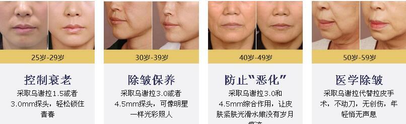 河南整形美容医院乌谢拉超声波提升除皱术