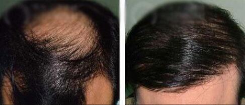 头发种植案例:我又重生了