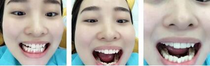 牙齿矫正案例:坚持的效果可以让我大笑