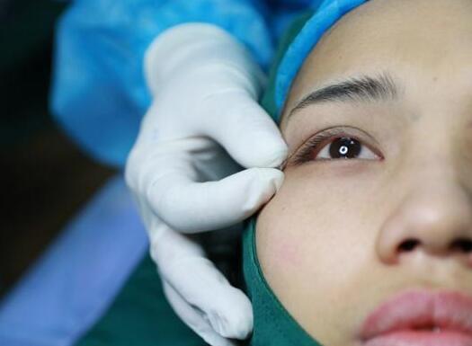 显微精准双眼皮案例:60分钟炼成