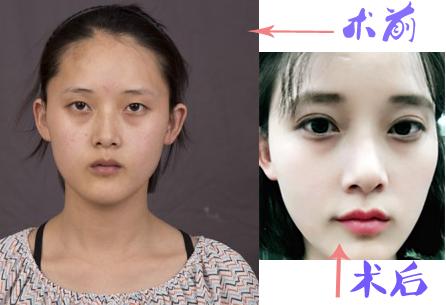 自然精雕双眼皮提肌案例案例:羡慕吧