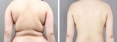 背部吸脂案例:赘肉没有了