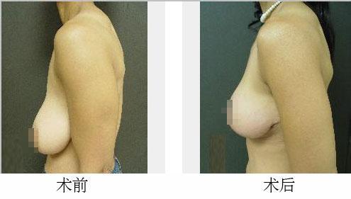 乳房下垂矫正手术案例:重回女人的自信