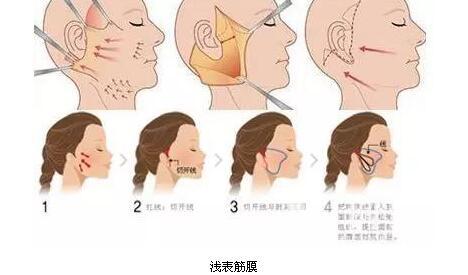 解决面部老化问题的手术已有数千年的历