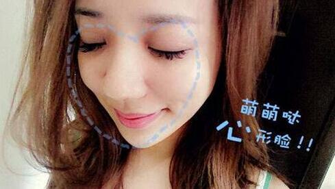 7月14日洪恺志亲诊苏李秀英解开微创童颜逆龄的秘密