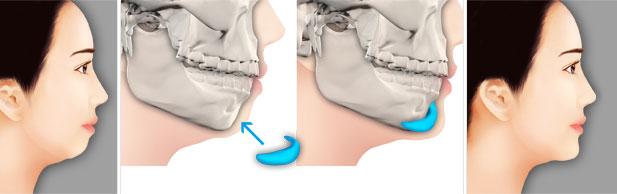 硅胶假体隆下巴会导致原下巴变形吗