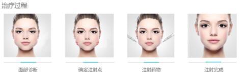 botox下颌缘提升术可使肌肉缩小吗