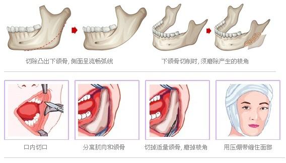长曲线下颌角截骨整形复原快吗
