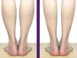 肉毒素瘦小腿案例:细细的小腿