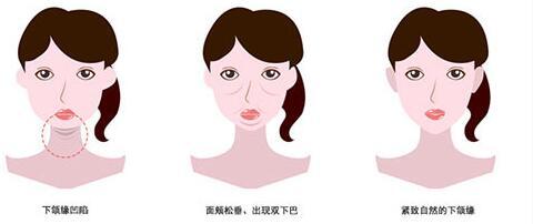 下颌缘提升可改变肌下颌缘肌肉力量吗
