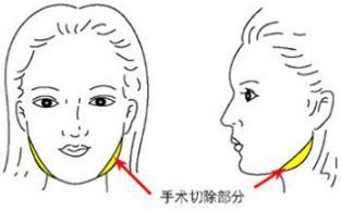 脸宽骨骼大做下颌角整形效果好吗