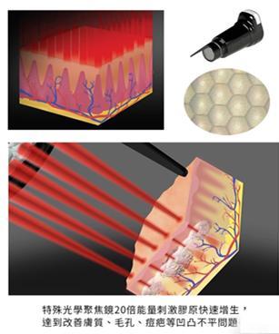 皮秒激光的副作用是因为仿真设备吗