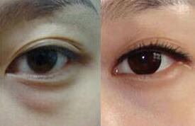 去眼袋手术案例:彻底的告别眼袋