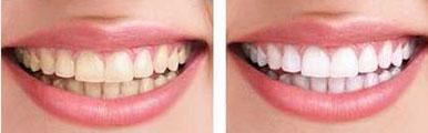 冷光美白案例:牙齿也要一白遮百丑