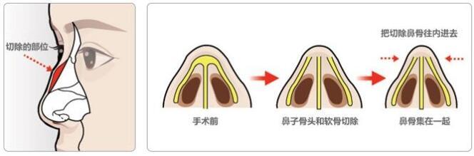 鹰钩鼻矫正术的麻醉情况如何