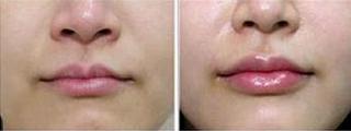 玻尿酸丰唇案例:效果自然