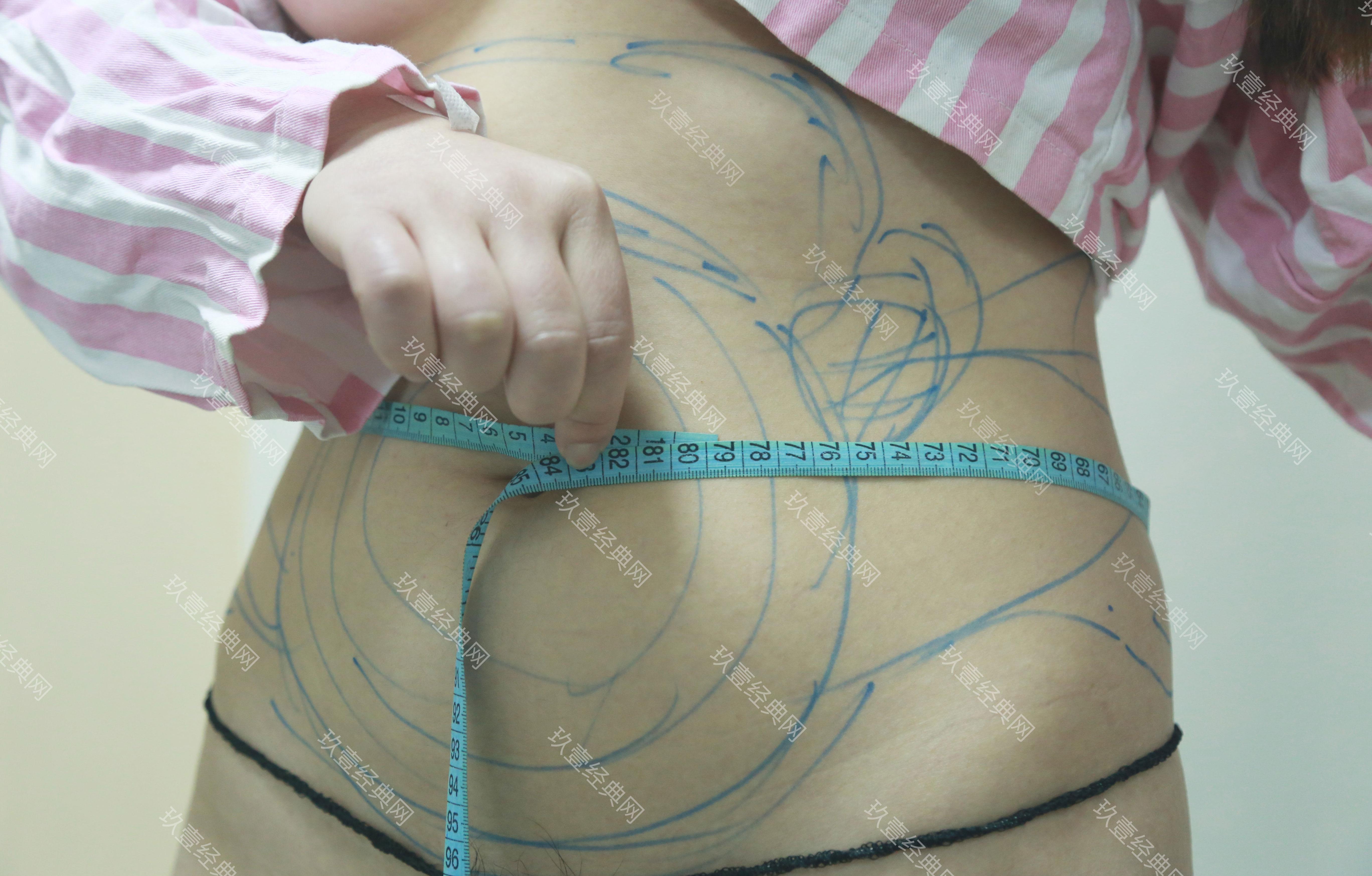 腰部吸脂案例:变细腰!