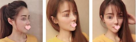 鼻综合隆鼻一个月的亲身经历