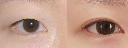 韩式双眼皮手术案例:我也是大眼美女啦!