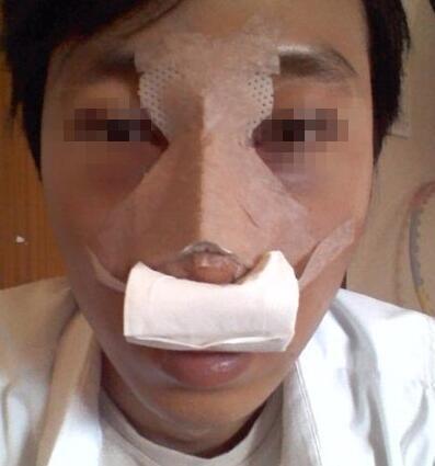 驼峰鼻矫正案例:不只是气质啊