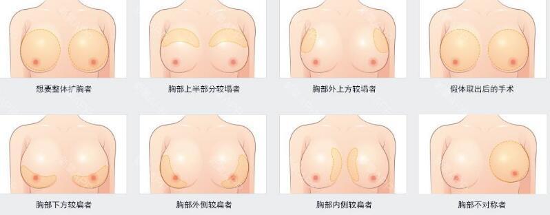 假体隆胸手术后能不能做钼钯检查