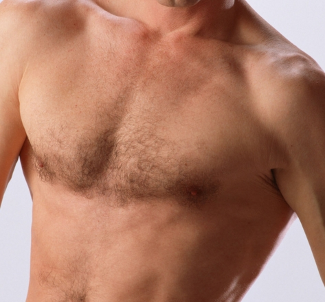 胸毛种植会不会排异呢?