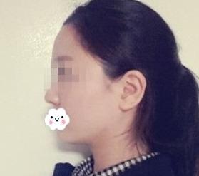 去颊脂垫术案例:脸瘦下来真是不一样!