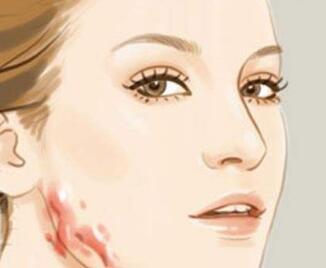 激光去脸上疤痕的价格在多少范围