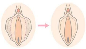 阴蒂肥大缩小术会痛吗