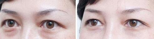去眼袋手术案例:这样的你才好看