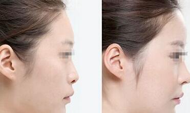 玻尿酸隆鼻案例:不只是改变