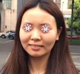 面部吸脂案例:效果惊人啊
