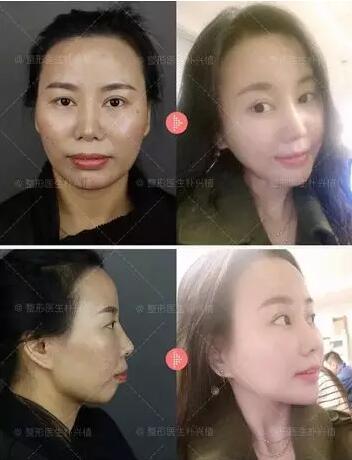 上海首尔丽格全球招募10位双颚手术模特