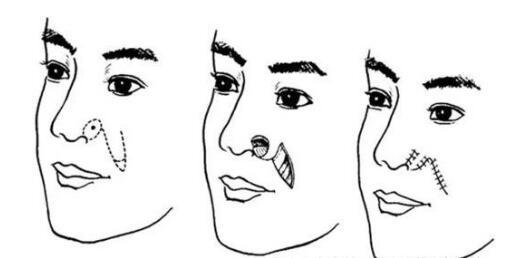 额部皮瓣全鼻再造是常用方法吗