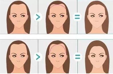 发际线种植术后毛发的生长方向会歪吗