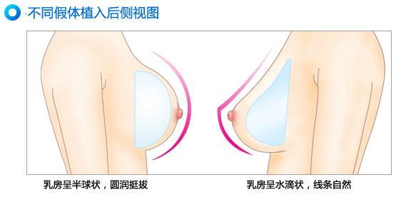硅胶假体隆胸真的安全有效吗