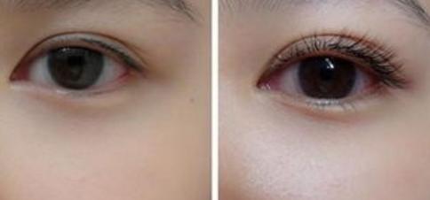 睫毛种植的角度如何才是好的