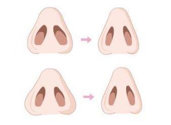 鼻孔缩小可以改善鼻子的对称性吗